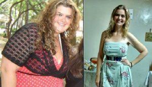 bariatrica antes e depois