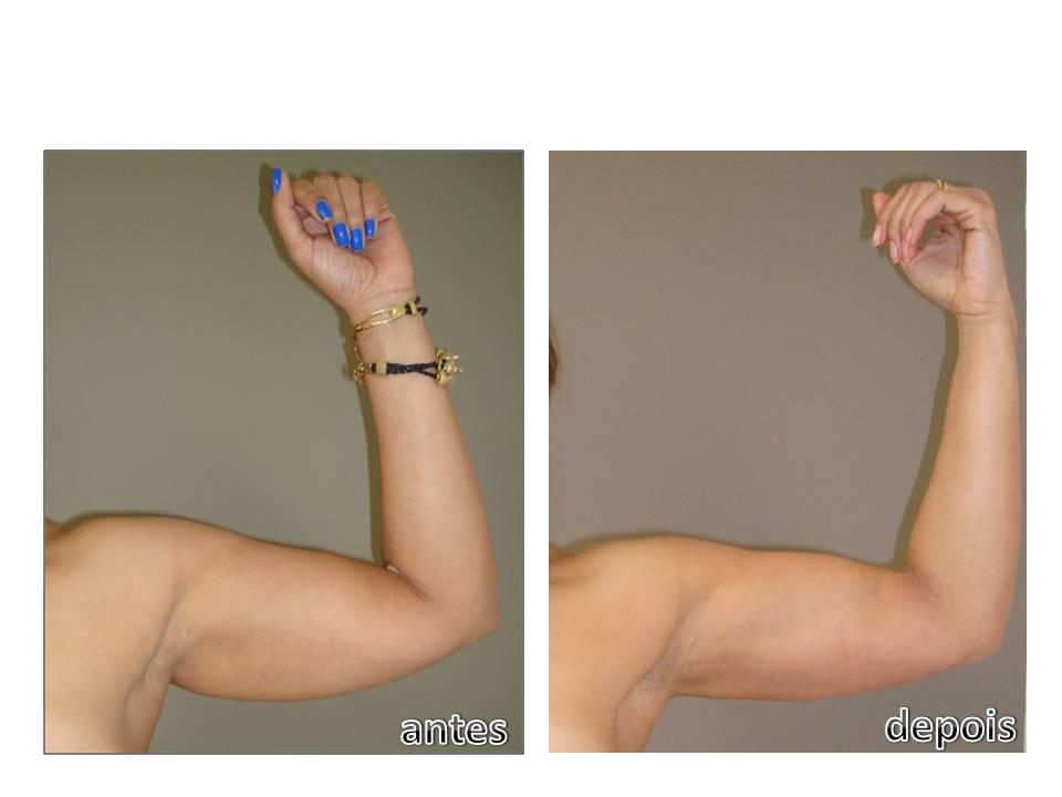 Magali braco esquerdo